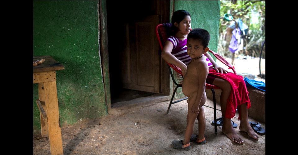 El vientre hinchado de Wesly Espino Ramírez, el menor de los hijos de Floridalma Ramírez, es una evidencia de la aguda desnutrición padecida por los niños