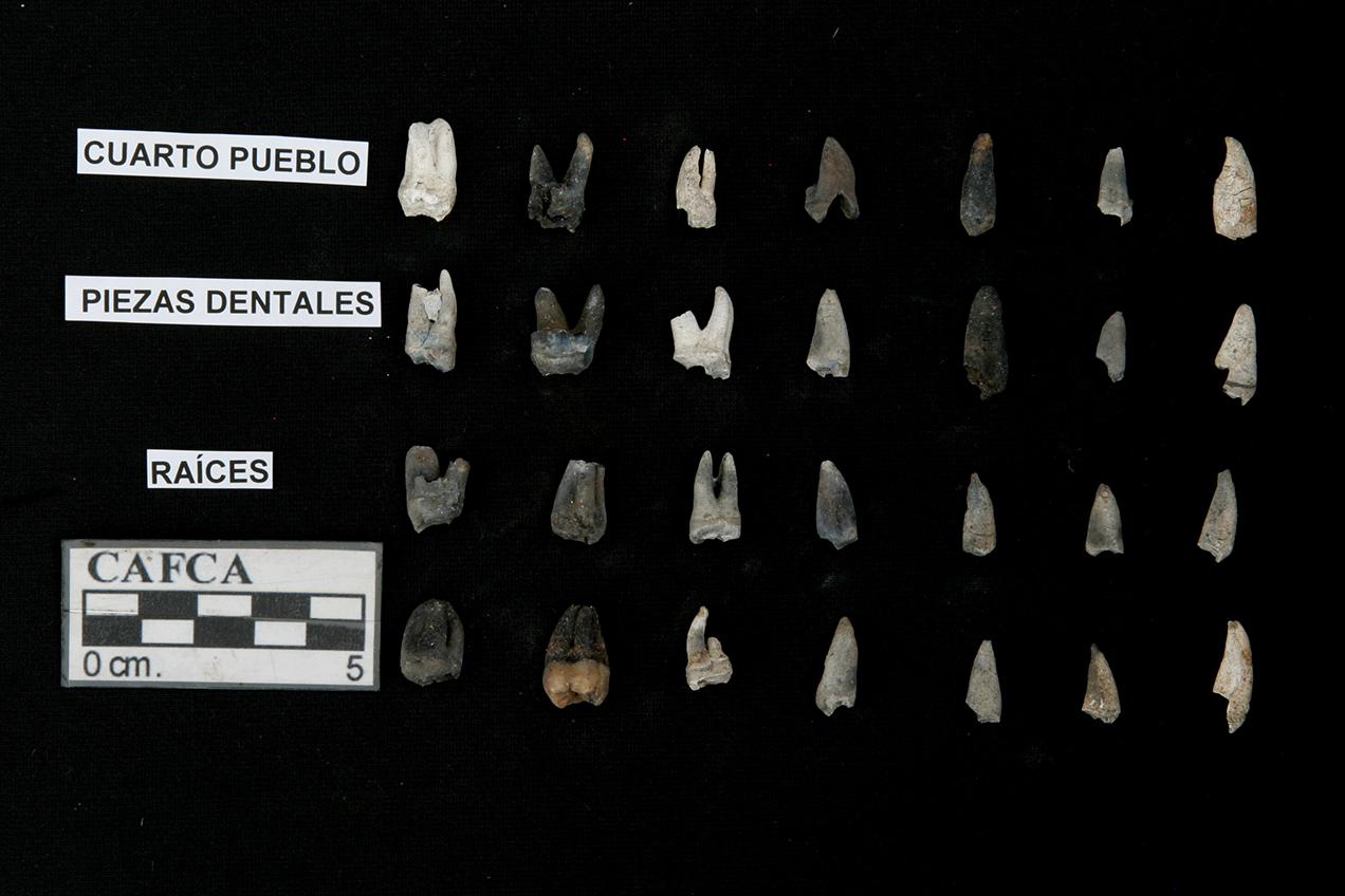 Restos de dentadura de personas asesinadas en la masacre de Cuarto Pueblo.