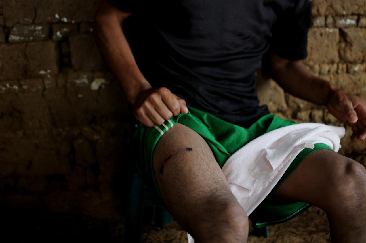 Uno de los heridos de bala durante el enfrentamiento entre agentes de la Policía Nacional Civil y los comunitarios. Eduardo Demetrio Camacho Orozco, miembro de la FEP de Escuintla, murió de un balazo.