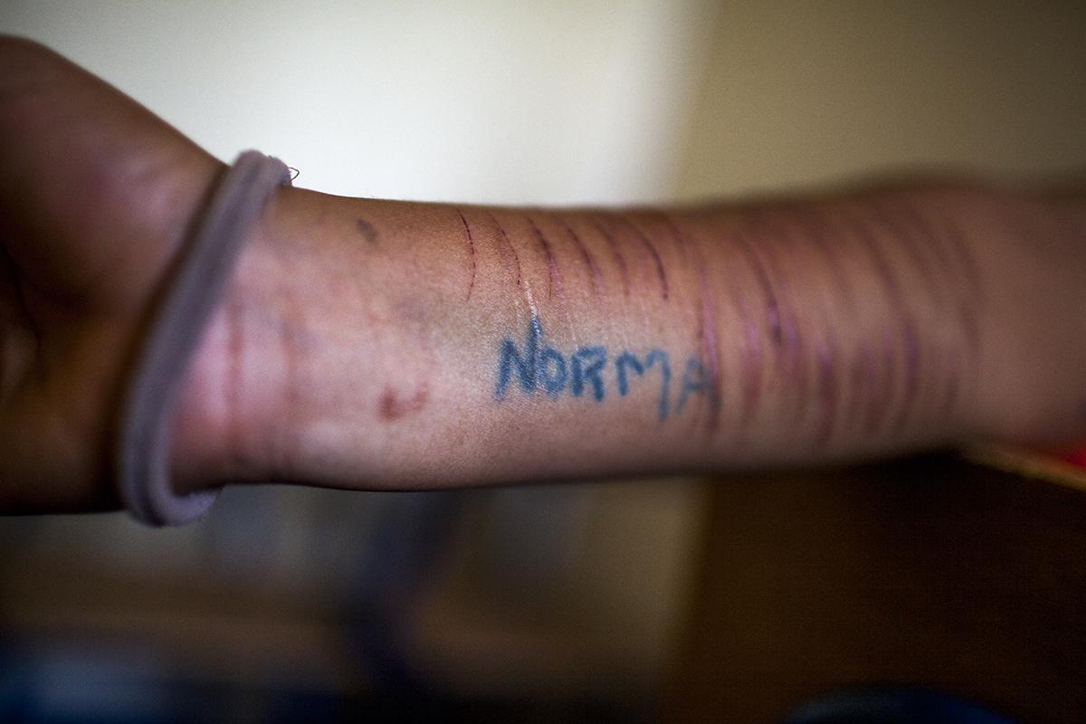 Una joven de 15 años muestra su brazo cortado y el tatuaje con el nombre de una familiar. Llegó a la casa de protección después de haber pasado cuatro meses en el Hogar Virgen de la Asunción.