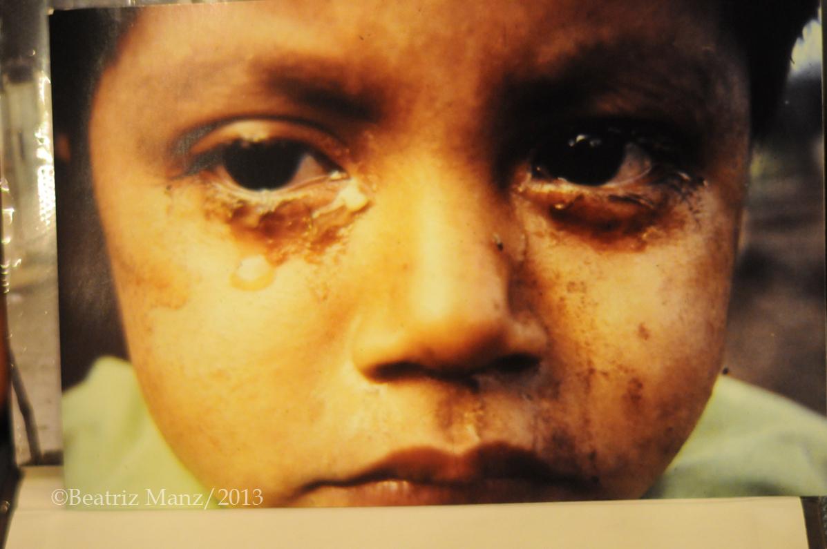 Las precarias condiciones en las que vivían los habitantes de las aldeas modelo se reflejan en los ojos enfermos del niño.