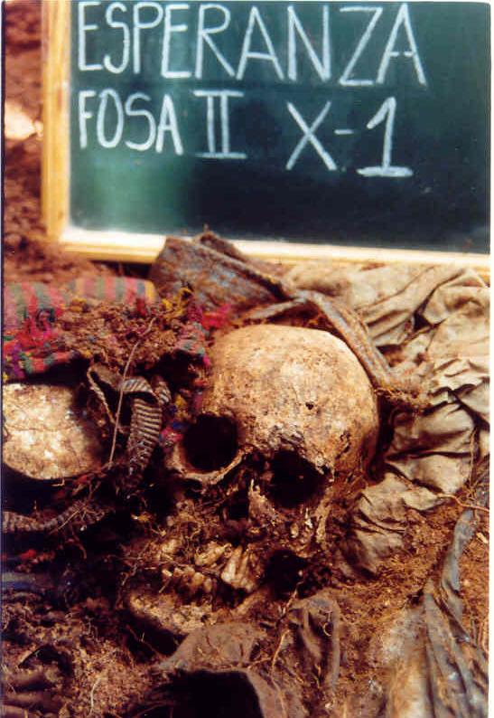 Osamenta de una de las víctimas exhumadas en Pueblo Nuevo.