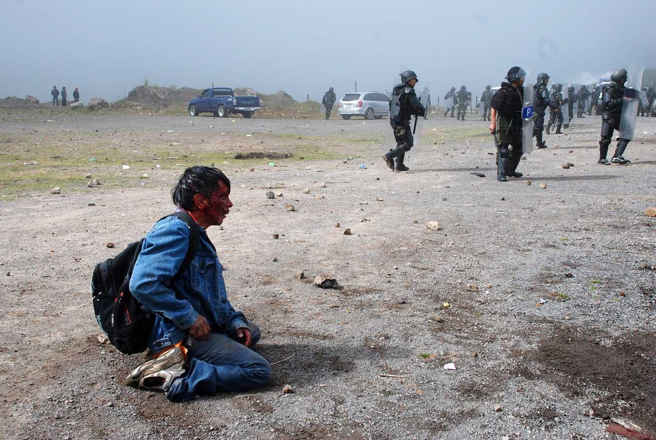 Un hombre herido en la cumbre ese 4 de octubre. Foto de Agencia EFE