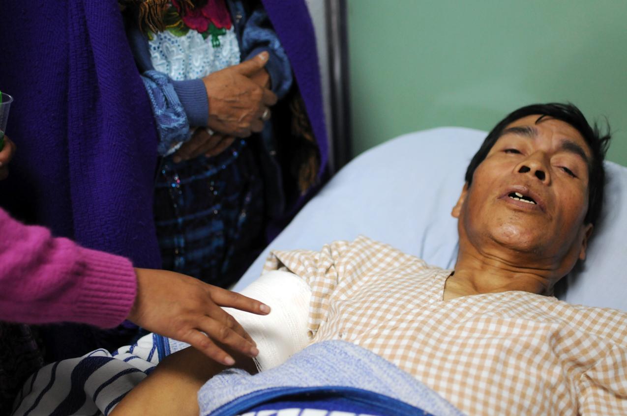 Santos Tahay, herido con bala.