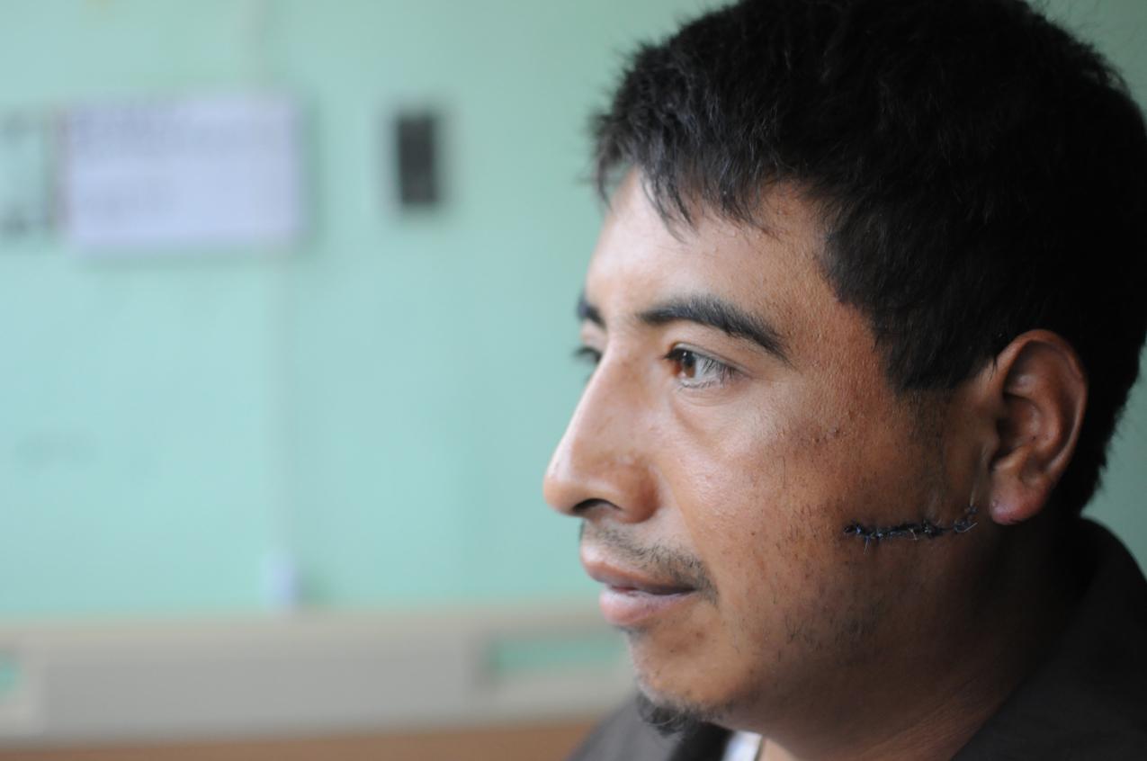 Santos García, herido con bala.