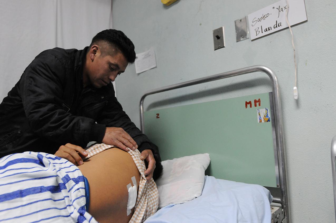 Santos Yax, herido con bala. El proyectil sigue en su espalda.